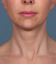 Azura Skin Care Center - Cary, NC - After Kybella Treatment