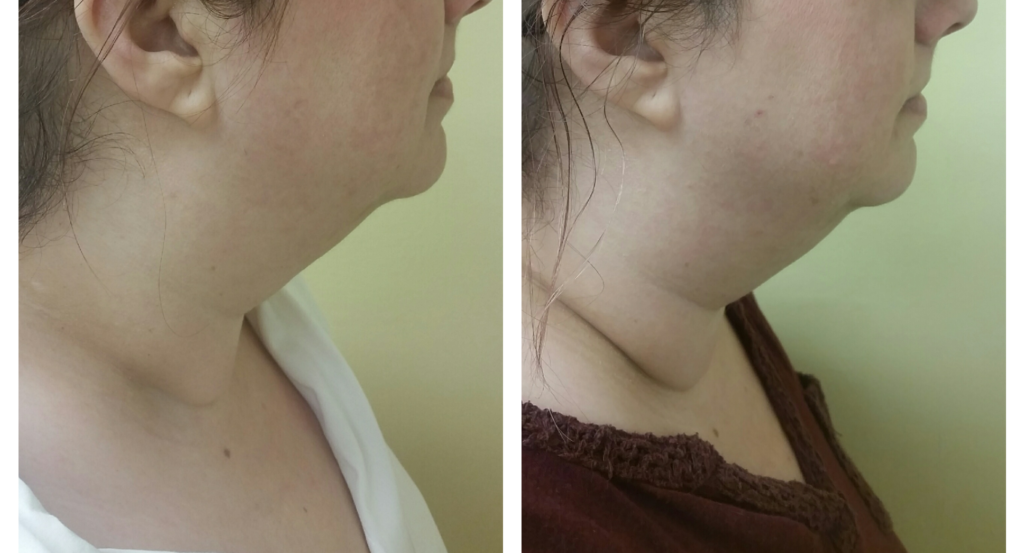 After and before three Exilis treatments lower face and neck
