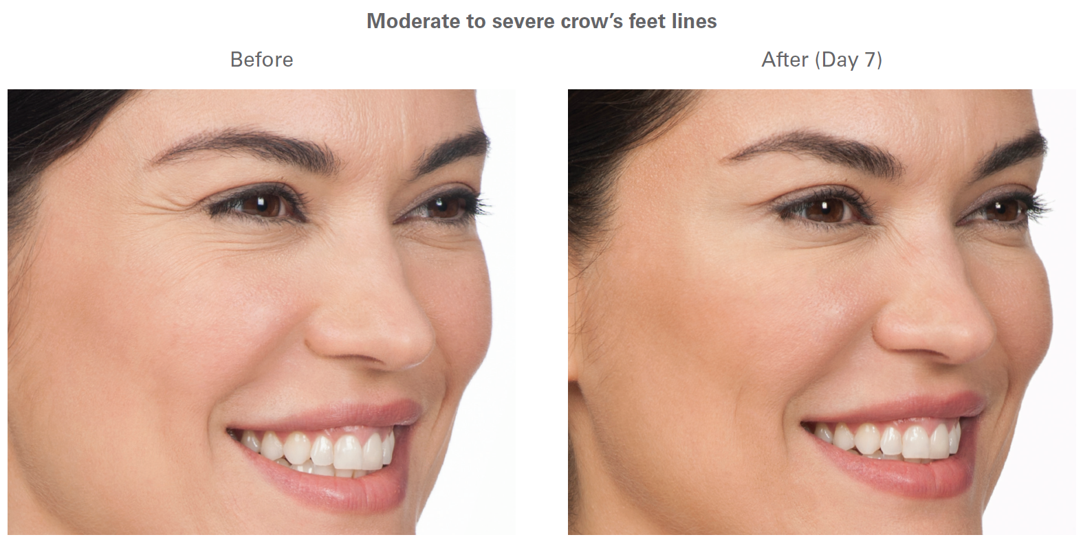 Botox Cosmetic before and after - Azura Skin Care Center - Cary, NC