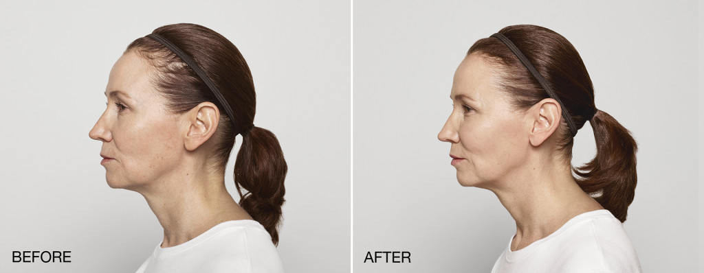 Restylane Lyft at Azura Skin Care Center in Cary, NC