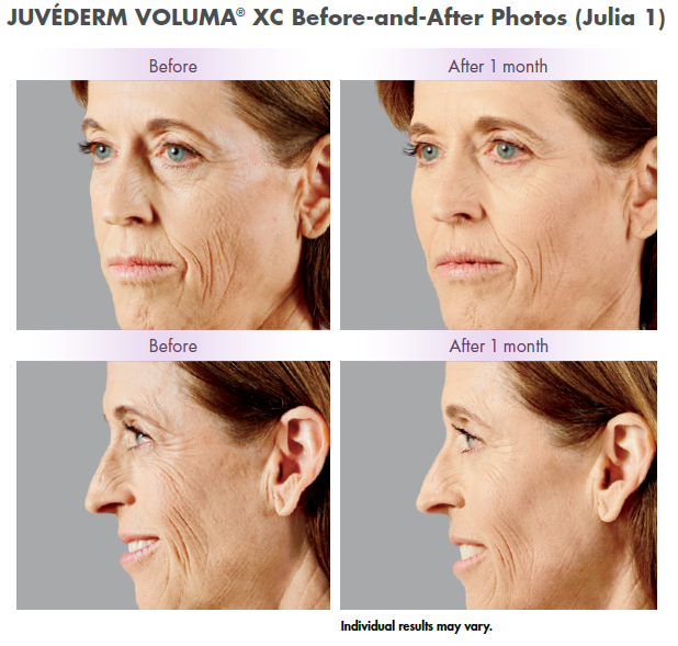 Juvederm Voluma dermal filler at Azura Skin Care Center - Cary, NC