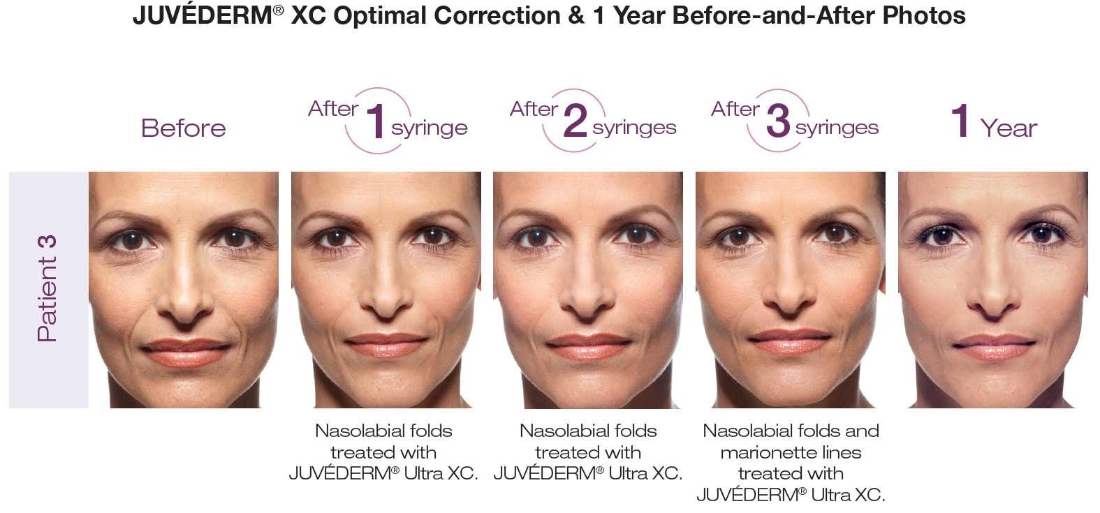 Juvederm XC fillers at Azura Skin Care Center - Cary, NC