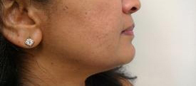 One Month After First Microneedling at Azura Skin Care Center