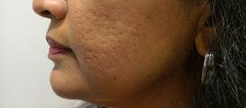 Prior to First Microneedling at Azura Skin Care Center