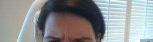 Before Dysport® - Azura Skin Care Center - MedSpa - Cary, NC