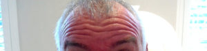 Before Dysport® Azura Skin Care Center | MedSpa Cary, NC