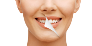 Teeth whitening at Azura Skin Care Center - Cary, NC