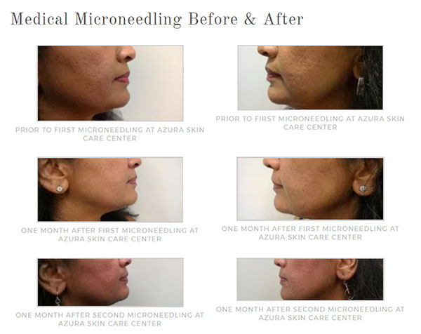 medical microneedling before and after at Azura Skin Care Center