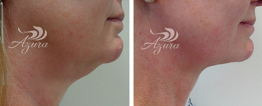 Kybella double chin treatments at Azura in Cary