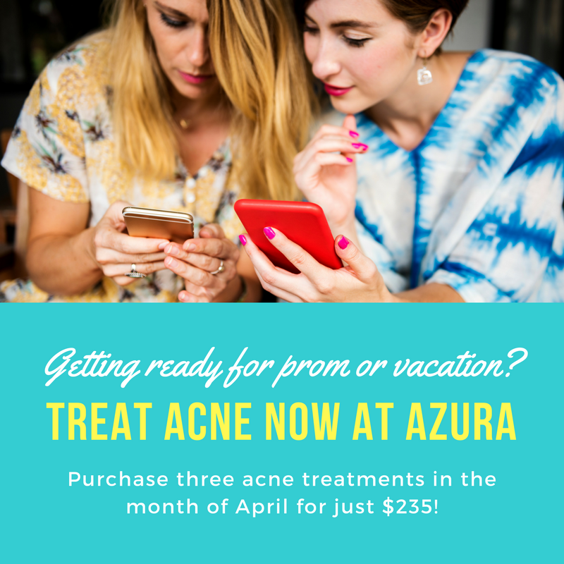 Acne treatment facials at Azura in Cary