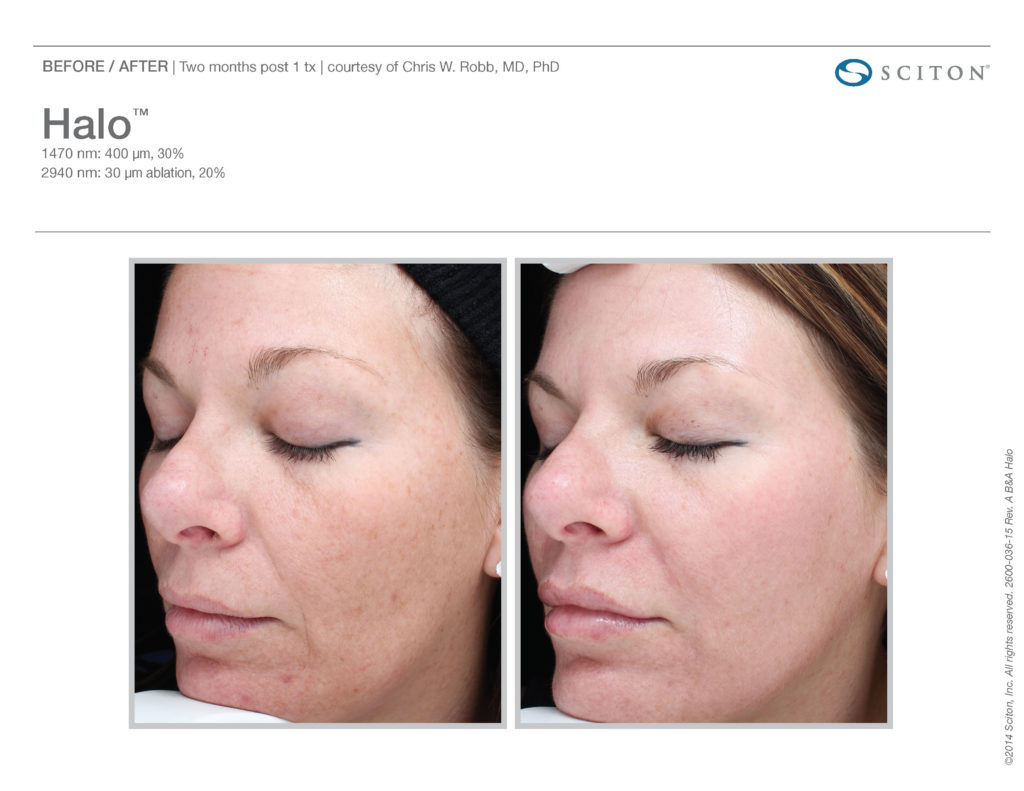 Halo Laser Results - Before and After - Azura Skin Care Center in Cary, NC