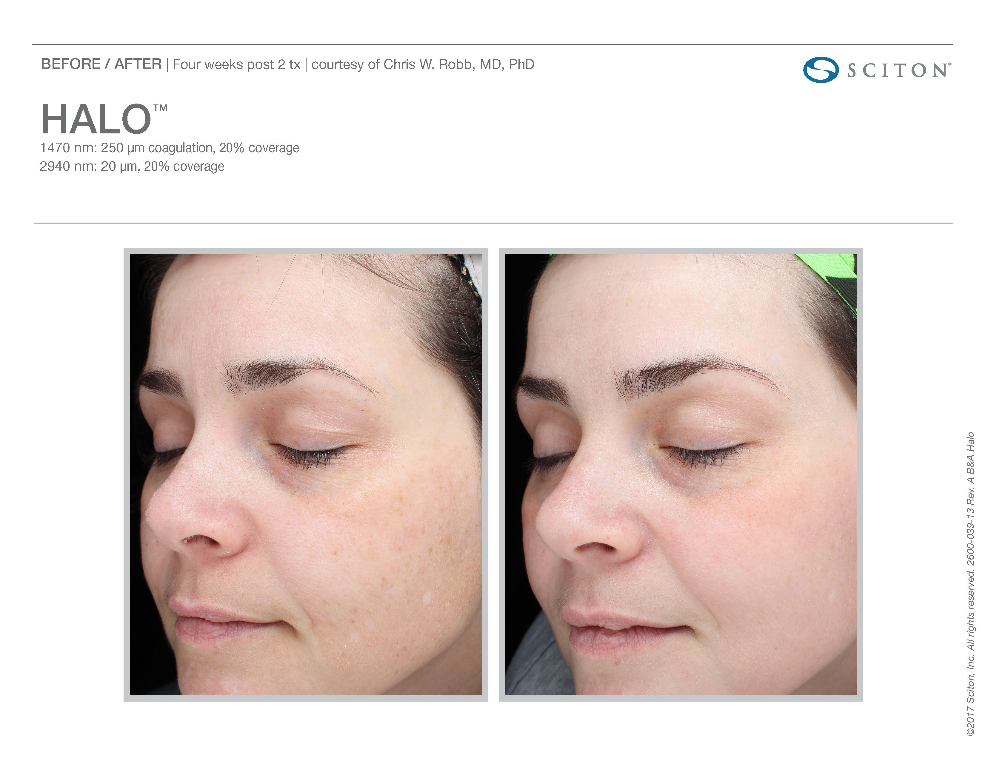 Sciton Joule - Halo™, BBL and Microlaser peel - Hybrid