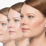Kybella for Double Chin at Azura Skin Care Center Cary, NC