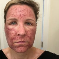 Halo™ Laser Before and After - Azura Skin Care Center - Cary, NC