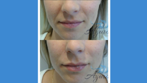 Lip filler before and after Azura Skin Care Center