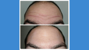 Forehead injectables before and after Azura Skin Care Center