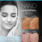 NanoLaserPeel™: Show up Friday, Show off Monday!
