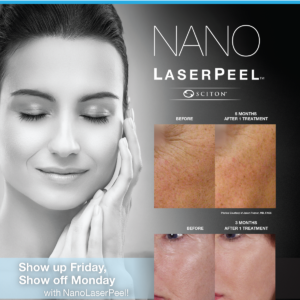 NanoLaserPeel Cary NC Azura Skin Care Center