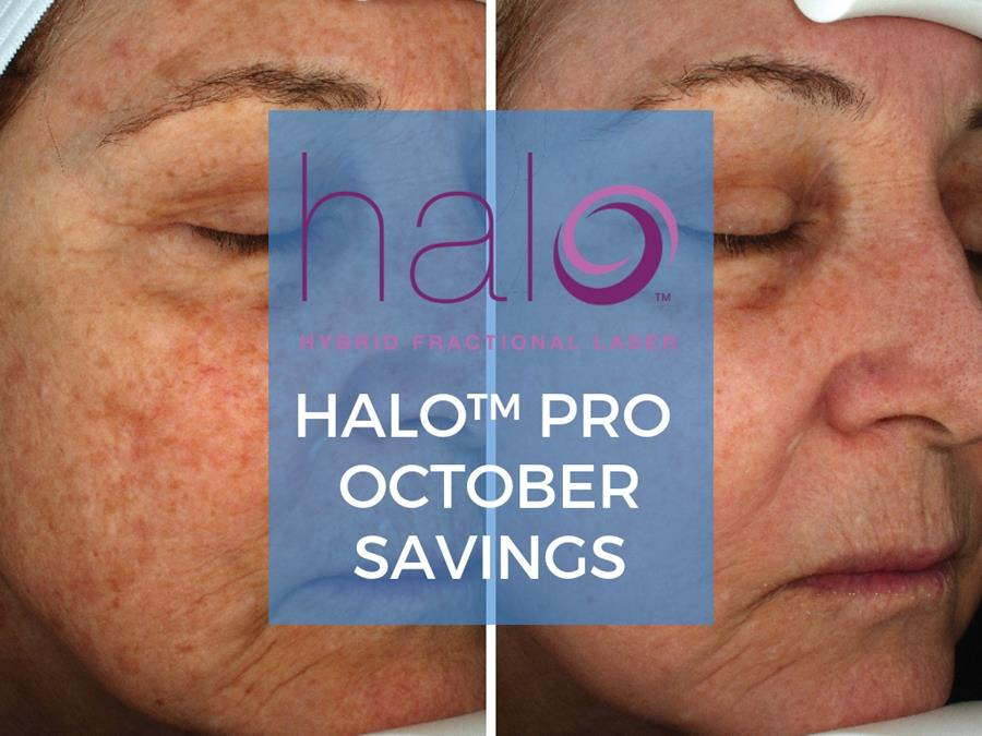 Halo Laser at Azura Skin Care Center Cary, NC