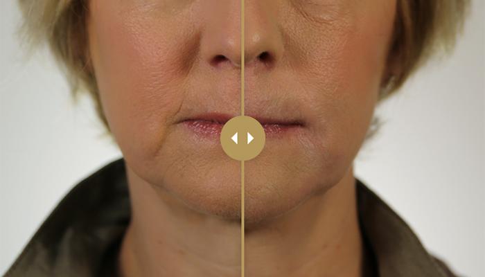 Versa lip filler Azura Skin Care Center Cary, NC