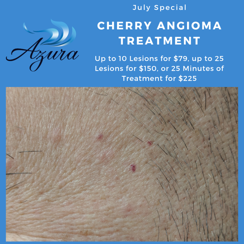 Azura Skin Care Center Cary, NC cherry angioma laser treatments