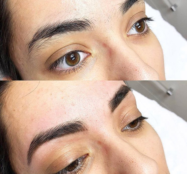 Azura Skin Care | Before and After | Brow Shaping and Waxing