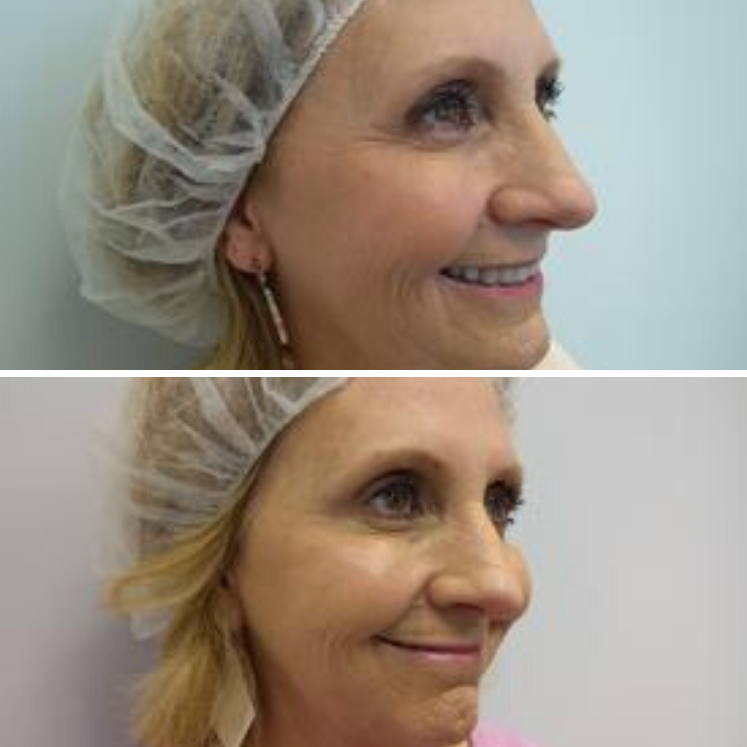 Botox at Azura Before and After