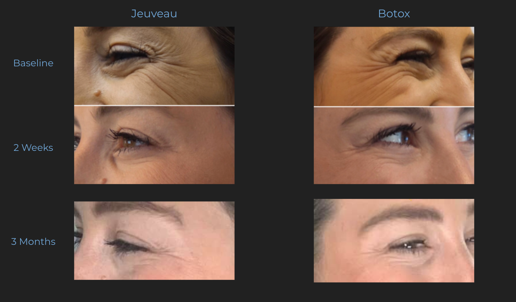 Crows Feet Results from Azura Skin Care Center