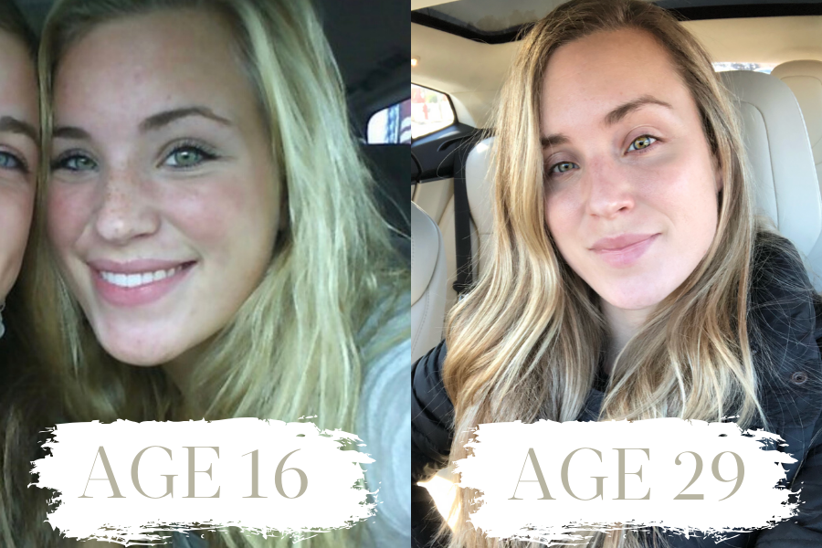 Natalie Yerger - How to Have Better Skin 5 Years from Now Than You Do Today