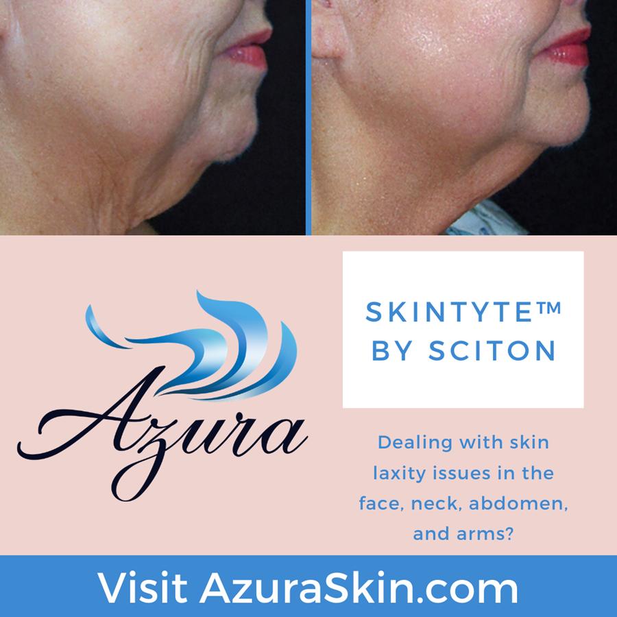 SkinTyte at Azura Skin Care Center