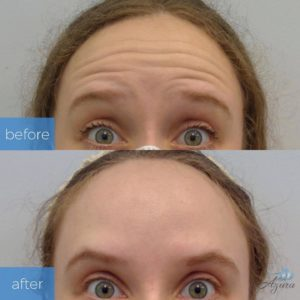 First-Time Dysport Before and After at Azura Skin Care Center Cary NC