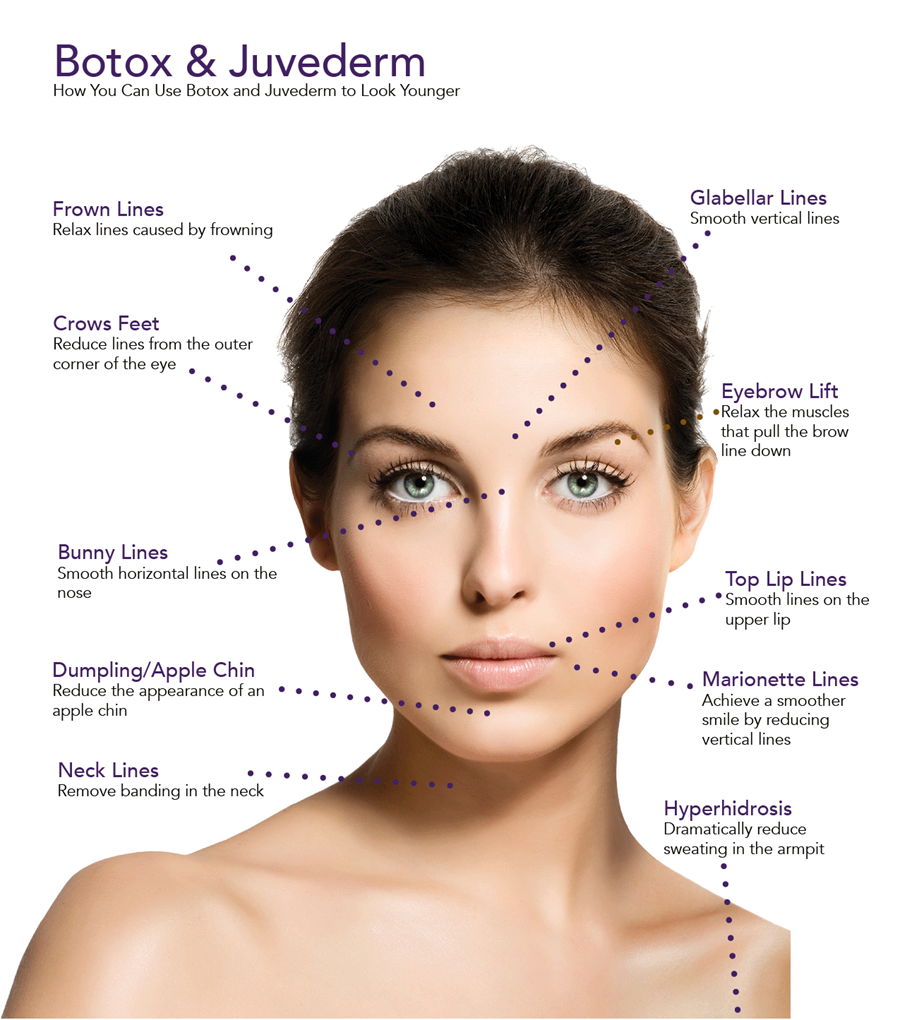 Botox and Juvederm available at Azura Skin Care Center Cary NC