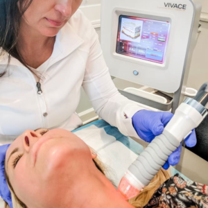 Hope performing Vivace treatment at Azura Skin Care Center in Cary