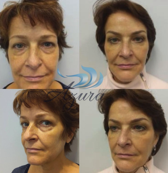 Before and After Dermal Filler Treatment at Azura Skin Care Center