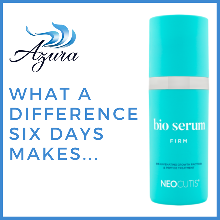 Neocutis Bio Serum Special at Azura Skin Care Center