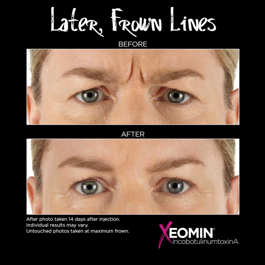 Xeomin for Eyebrow Furrow at Azura Skin Care Center Cary NC