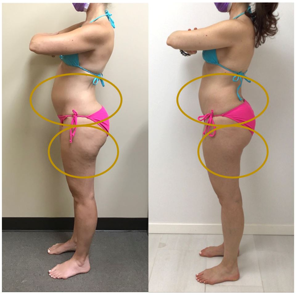 Physiq Before and After - Azura Skin Care Center Cary NC