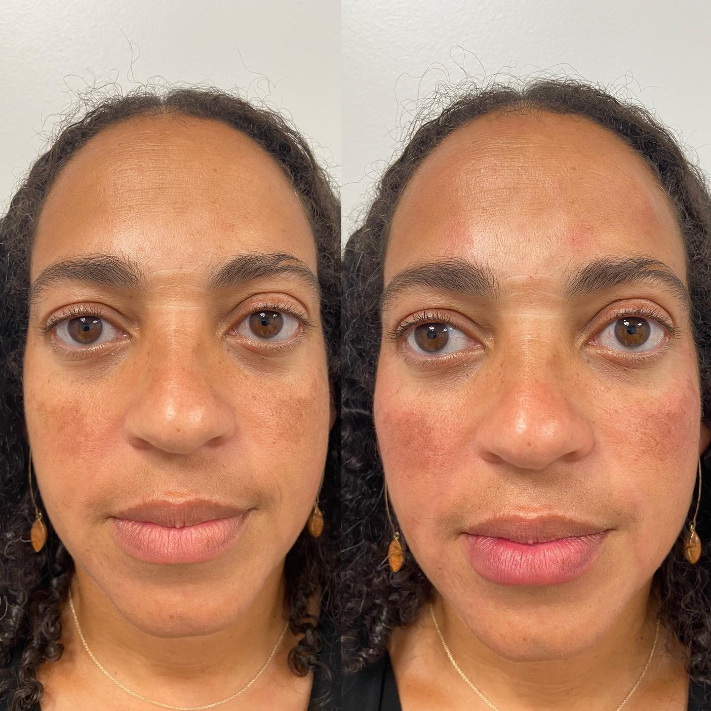 Azura Skin Care Center Cary NC Before and After - Voluma and Versa 01