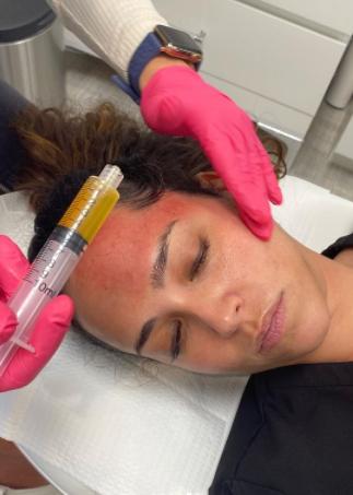 PRP Facials at Azura Skin Care Center Cary NC