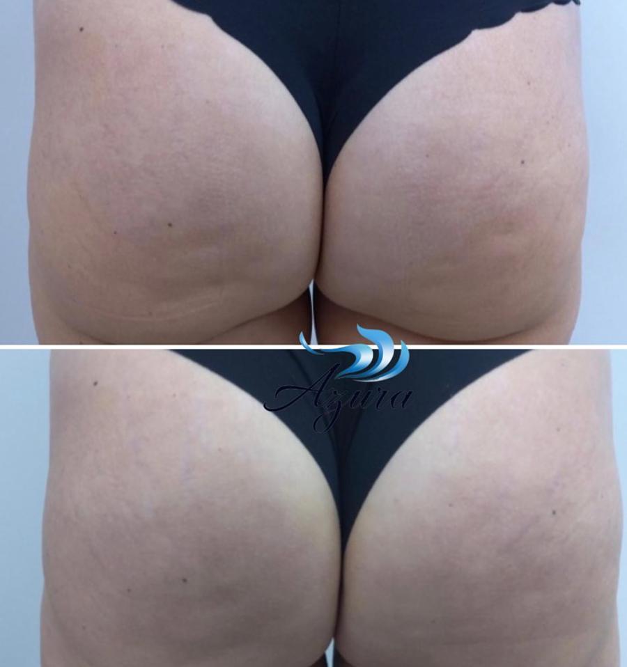 QWO Treatments at Azura Skin Care Center