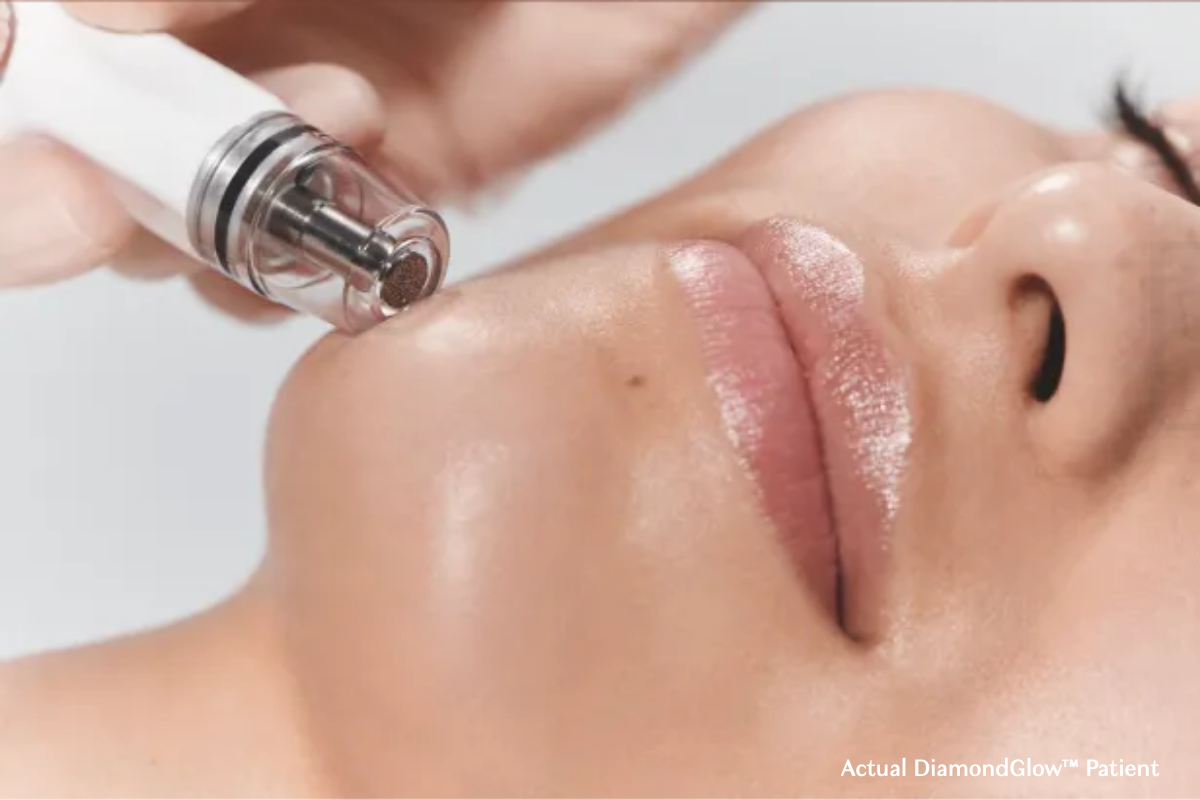 Diamond Glow Facial at Azura Skin Care Center